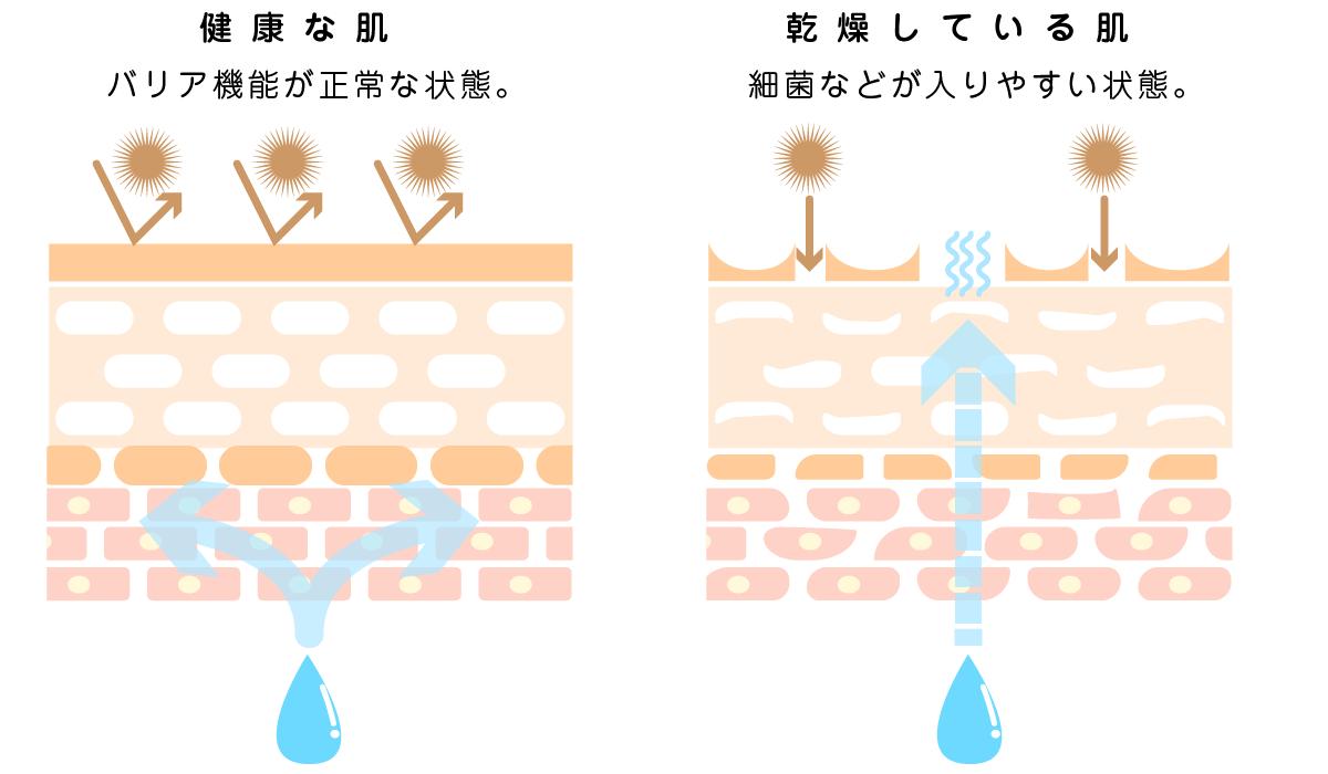 健康な肌と乾燥している肌の違い